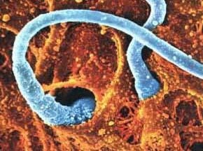 внедрение сперматозоида в яйцеклетку