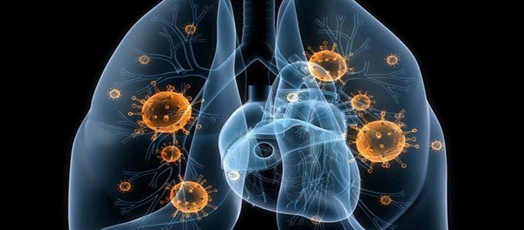 Особенности течения пневмонии у недоношенного ребенка