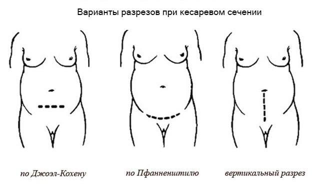 Беременность двойней после кесарева сечения