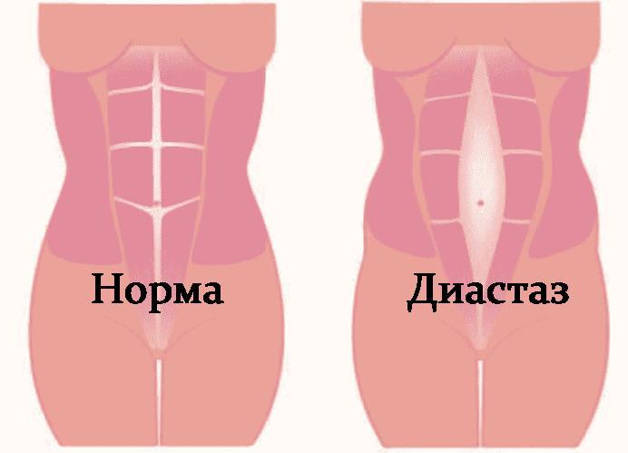 диастаз после двойни